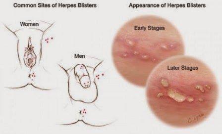 genital herpes initial symptoms