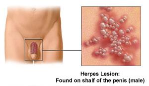 Sexual Infections In Men