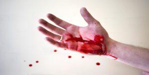 hemophilia--symptoms-inside-image--